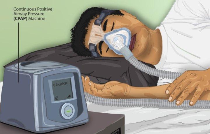 Sleep Apnea Causes